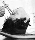 lobotomy experiments